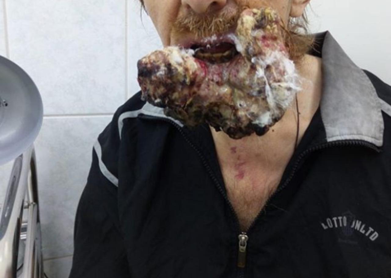 Кемеровчанин, занимавшийся самолечением рака в тайге, стал героем программы Елены Малышевой
